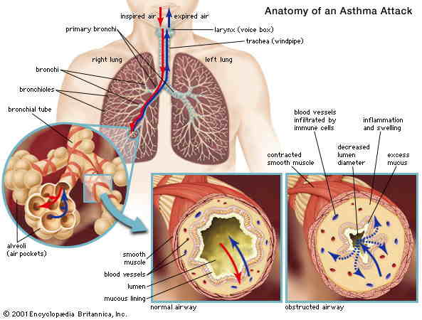 Report on Asthma