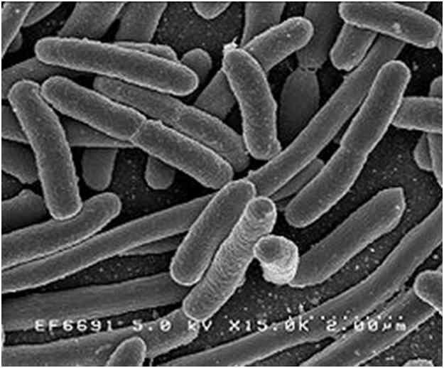 Electron micrograph of Escherichia coli Bacteria