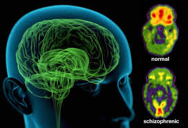 Report on Hair samples of Schizophrenic patients