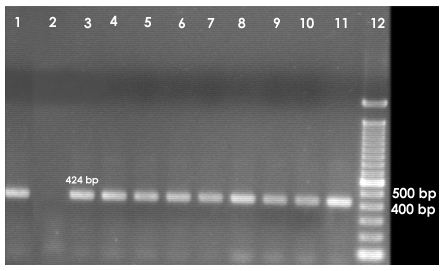 agarose-gel-pcr