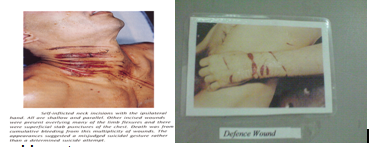 Age of incised wound