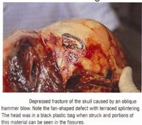 Skull Injuries