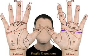 Assignment on Fragile X syndrome