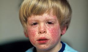 Assignment on Measles