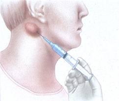Intraocular Implants for Extended Drug Delivery