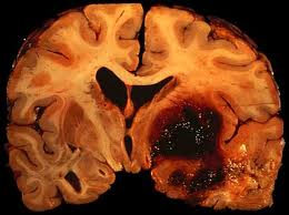 Correlation Between Intracerebral Hemorrhage Score and Spontaneous Intracerebral Hemorrhage
