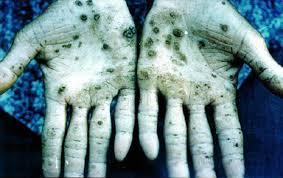 Arsenic contamination and Mitigation in Bangladesh