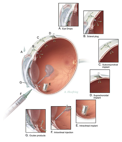 Principal methods of local drug delivery to the eye