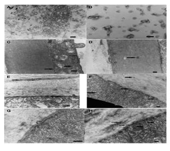 TEM observations of corneas