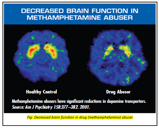 Term Drug Abuse Impairs Brain Function