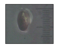 1st nymphal stage of P.marginatus