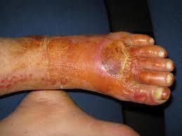 Diabetic Foot Among Diabetic Patients