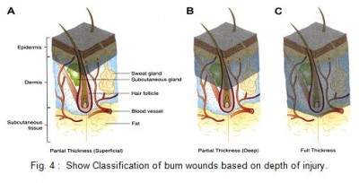 Classification of burn wounds based on depth of injury