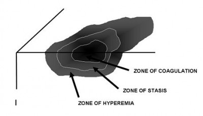 Zones of injury