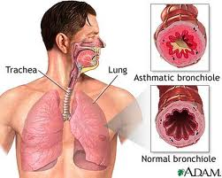 Three Warning Signs of an Asthma Attack