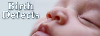 Importance of Screening Newborn Babies for Birth Defects