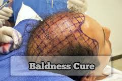 Surgical Cure for Baldness