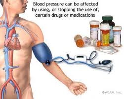 Basic Medical Treatments for Hypertension