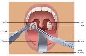 Adenoids Surgery is not Always Effective