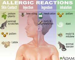 Problems Happens During an Allergic Reaction