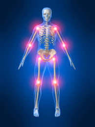 Acupuncture Can Relieve Arthritis Pain