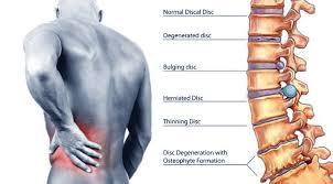 Common Back Pain Treatments