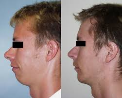 The Attractiveness of Chin Augmentation