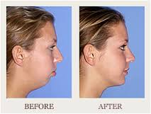 Four Things to Judge with Chin Surgery