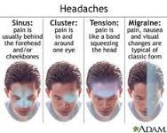 Effective Ways to Get Rid of Headache Naturally