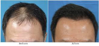 Discuss on Hair Transplant Methods