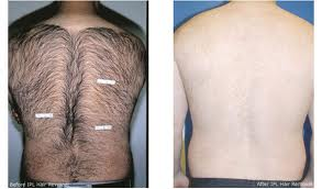 Advantages and Disadvantages of Laser Hair Removal