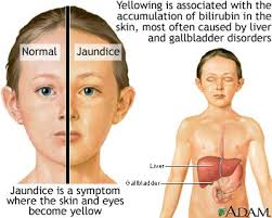 Treatment Strategies to Prevent Kernicterus in Neonatal Jaundice