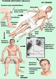 Four Main Symptoms of Alcoholism