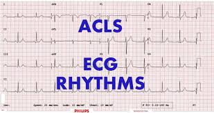 Lecture on ECG Rhythm Interpretation