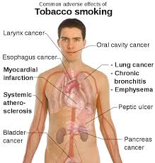 Presentation on Bad Effects of Smoking