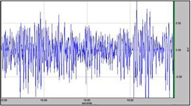 EMG Equipment and Measurement