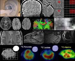 Lecture on Biomedical Imaging