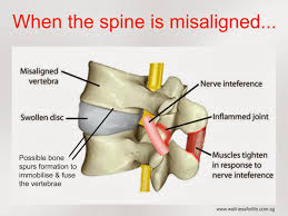 Chiropractor Treatment for Spine Misalignment