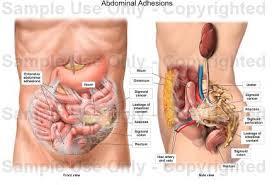 Signs of Abdominal Adhesions