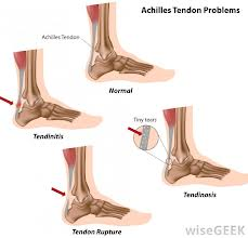 How to Avert Achilles Tendon Injuries