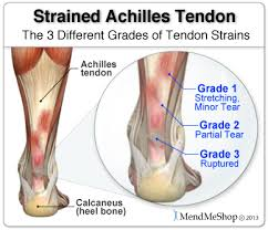 Reasons of Achilles Tendon Pain