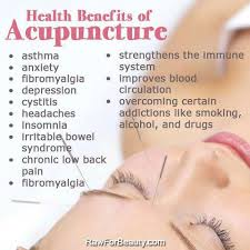 Advantages of Acupuncture
