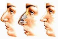 Analysis Aesthetic Surgery Treatment