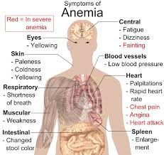 Natural Treatment for Anemia Symptoms