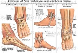 Symptoms and Causes of Ankle Fractures in Kids
