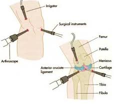 Effects of Arthroscopy Surgery