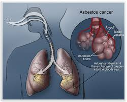 Define and Discuss on Asbestos Facts