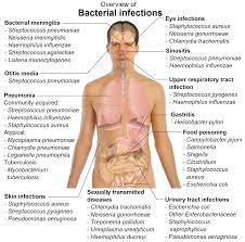 Explain Bacterial Infections and Viruses