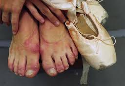 How to Prevent Blistered Feet