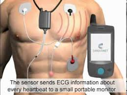 Define and Discuss on Cardiac Telemetry